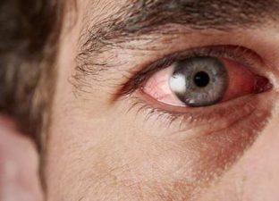 Покраснение оболочек глаз